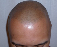 Scalp Micropigmentation by Artistry Of Permanent Makeup of Orange County