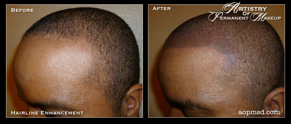 how to grow back hairline