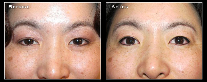 Artistry Of Permanent Makeup San Diego - Before & After Gallery - Full Face Makeup