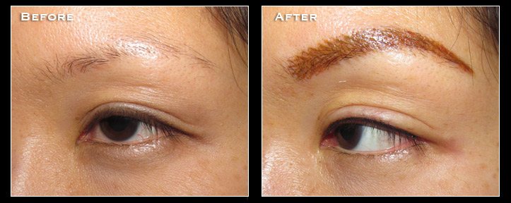 Artistry Of Permanent Makeup San Diego - Before & After Gallery - Hairline Enhancement
