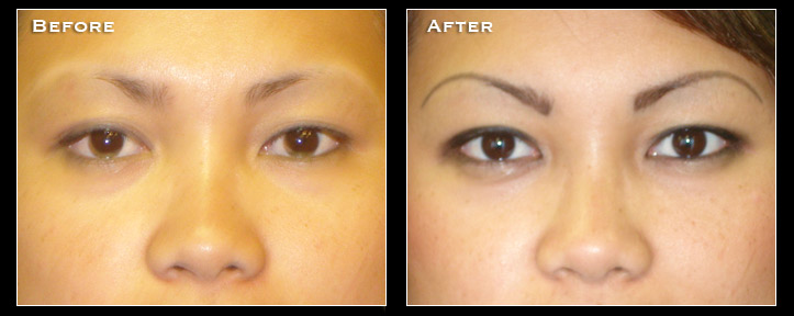 Artistry Of Permanent Makeup San Diego - Before & After Gallery - Permanent Eyeliner
