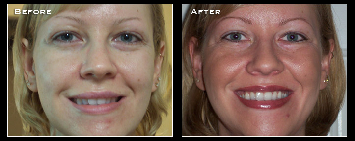 Artistry Of Permanent Makeup San Diego - Before & After Gallery - Receding Hairline Enhancement