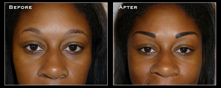 Artistry Of Permanent Makeup - Before & After Gallery - Permanent Eyeliner