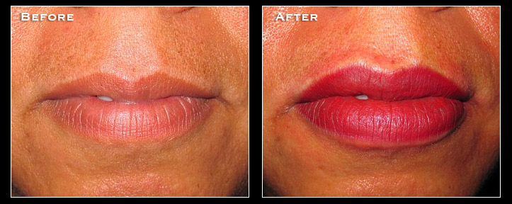 Artistry Of Permanent Makeup San Diego - Before & After Gallery - Areola Repigmentation
